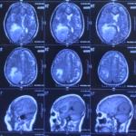 Chụp MRI có vai trò như thế nào trong chẩn đoán u màng não